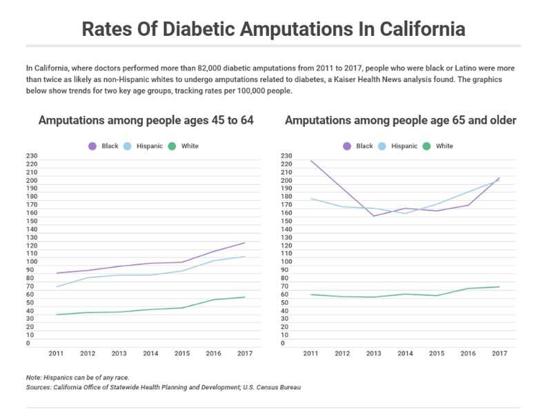 Rates of diabetes amputations in California
