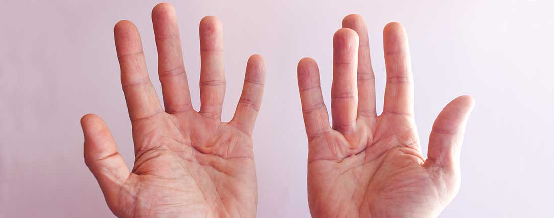 Hands with Dupuytren contracture